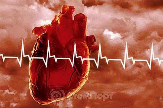 Реаниматология острая сердечно сосудистая недостаточность -