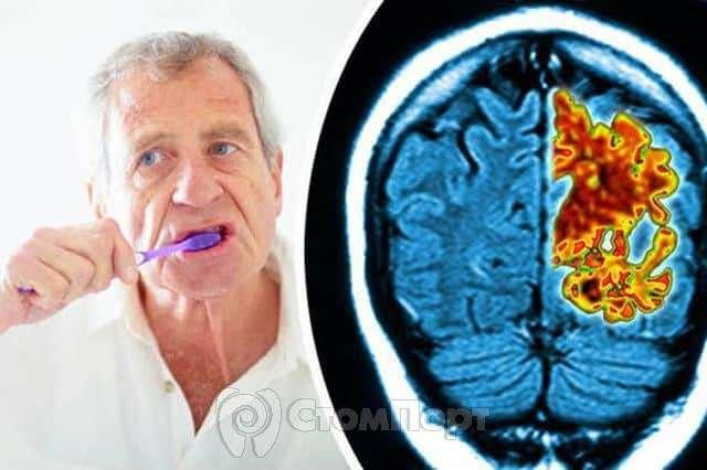 Пародонтит и деменция