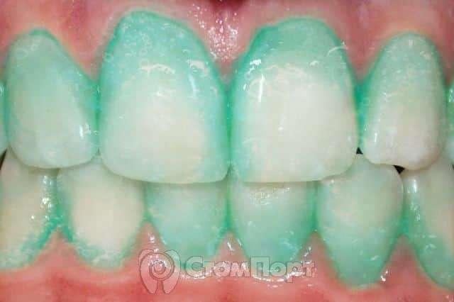 Plaque HD - зубная паста от инсульта