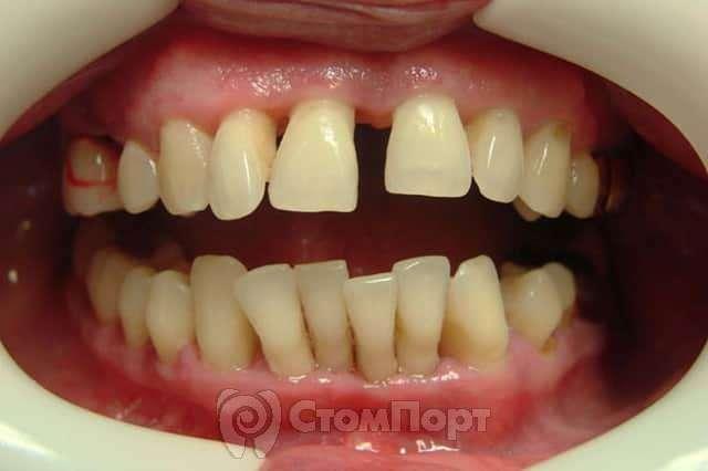 Подвижность зубов по Энтину