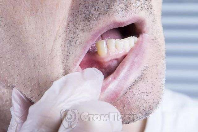 Потеря зубов и сердечно-сосудистые заболевания