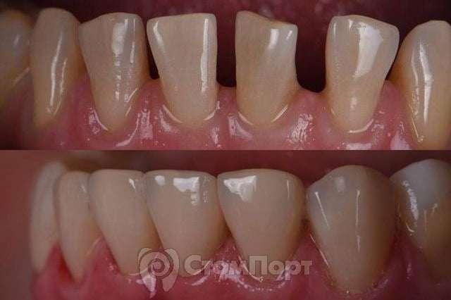 Прямая реставрация шести передних зубов нижней челюсти