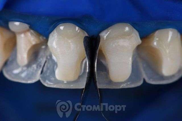 Реставрация верхних резцов с исправлением осей зубов