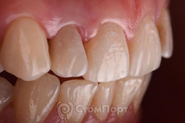 Реставрация зуба 1.2 по силиконовому ключу с использованием красок