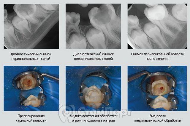 Сохранение жизнеспособности пульпы в практике детского стоматолога