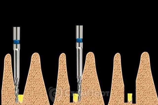 Удаление сломанной верхушки зуба