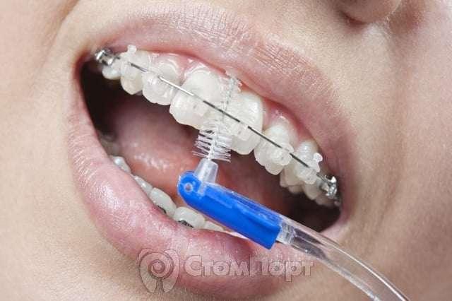 Уход за полостью рта при ортодонтическом лечении