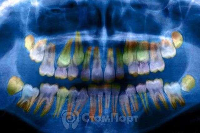 Состояние зубов отражает уровень стресса