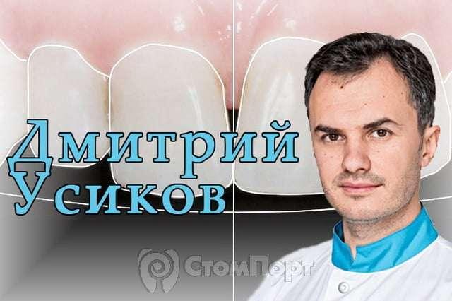 """Дмитрий Усиков - """"Цифровое моделирование улыбки - digital smile design"""""""