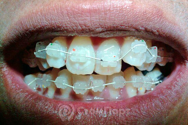 Ускоренная ортодонтия