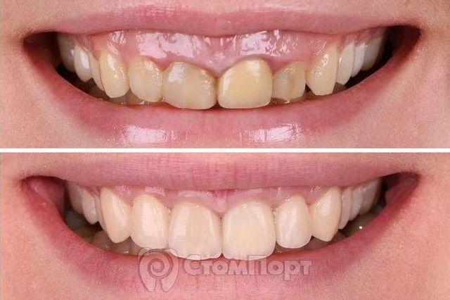 Устранение десневой улыбки - до и после