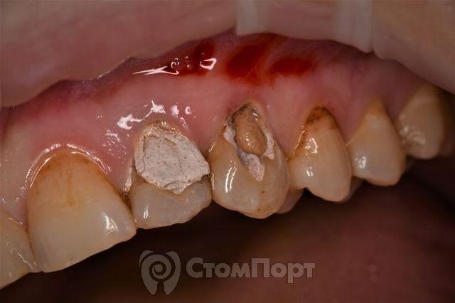 Влияние кальяна на зубы