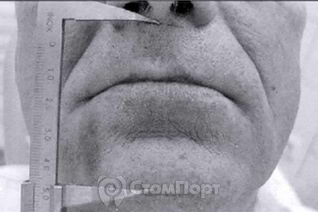 Высота нижнего отдела лица