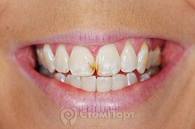 Виды заболеваний зубов
