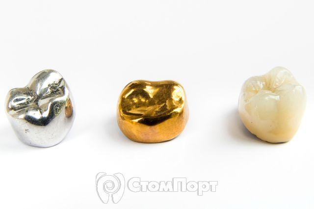 Зубные коронки - виды и особенности